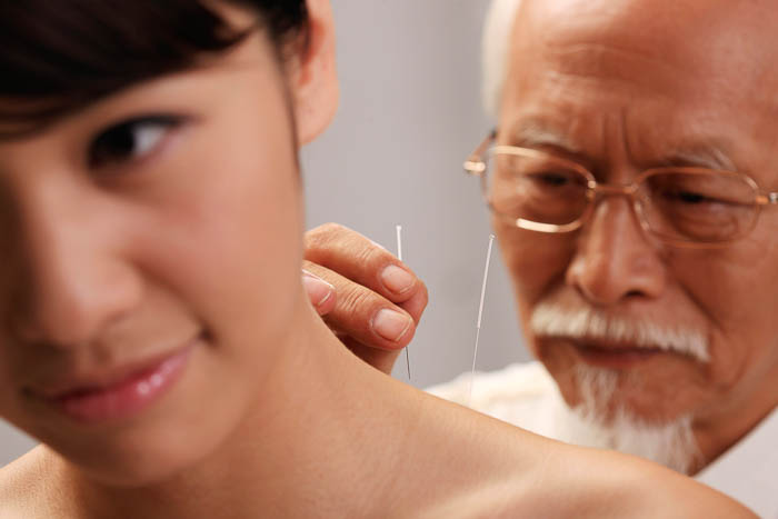 TCM treatment Acupuncture - Chinese Medical Center Amsterdam